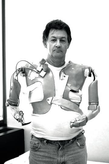 Jesse Sullivan, al que le fueron implantados unos brazos biónicos que responden a sus estímulos nerviosos.
